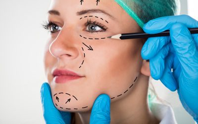 What Are the Different Types of Facelifts?