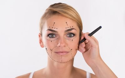 What to Expect From Facelift Surgery: Before, During, and After