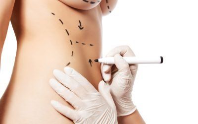Who Is the Ideal Tummy Tuck Candidate?