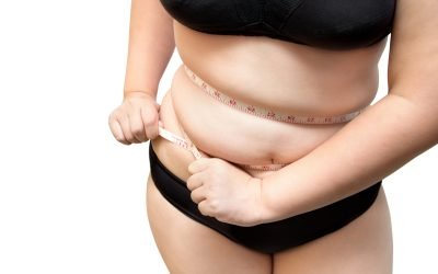 Liposuction vs Tummy Tuck: Which Is Right for You?